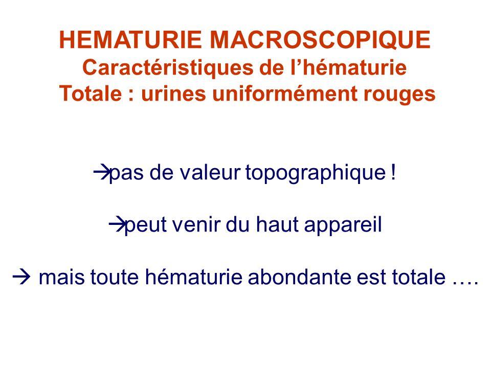 Caractéristiques de lhématurie Totale : urines uniformément rouges pas de valeur topographique ! peut venir du haut appareil mais toute hématurie abon