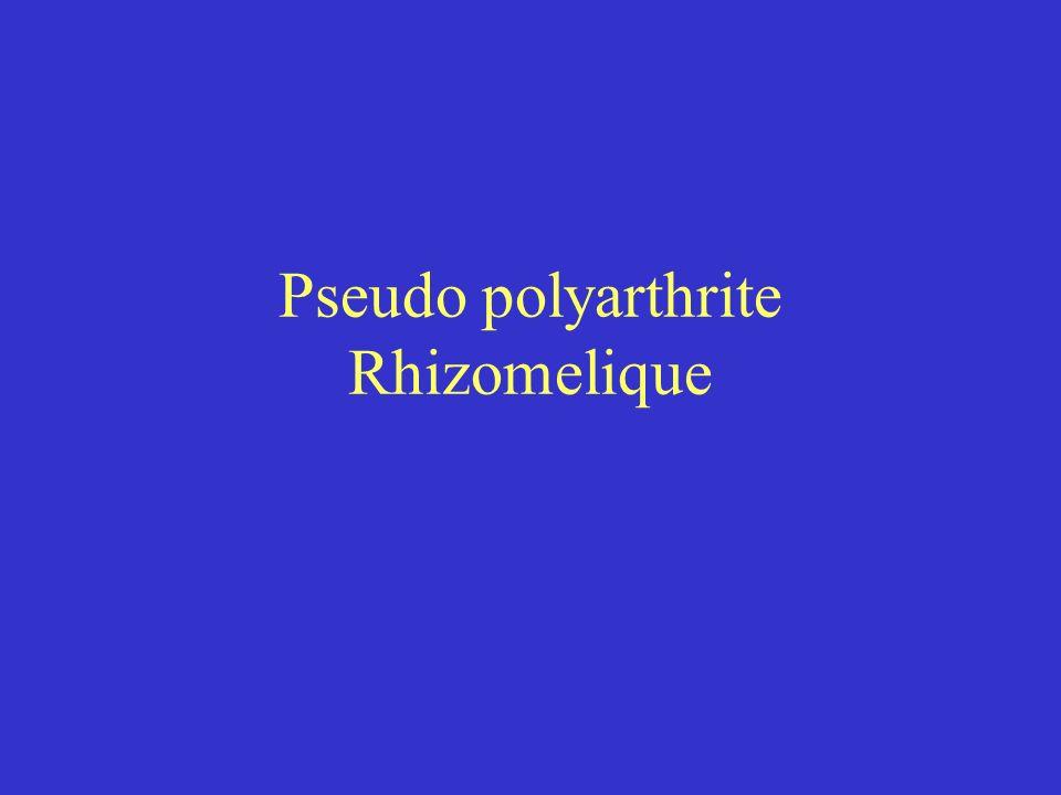 Pseudo polyarthrite Sujet âgé > 50 ans arthromyalgie des ceintures scapulaires et pelviennes + Horton 5 à 50% des cas prévalence: 0.6% Pathogénie: synovites + atteintes périarticulaires (atteinte vasculaire commune avec Horton) (affection musculaire)