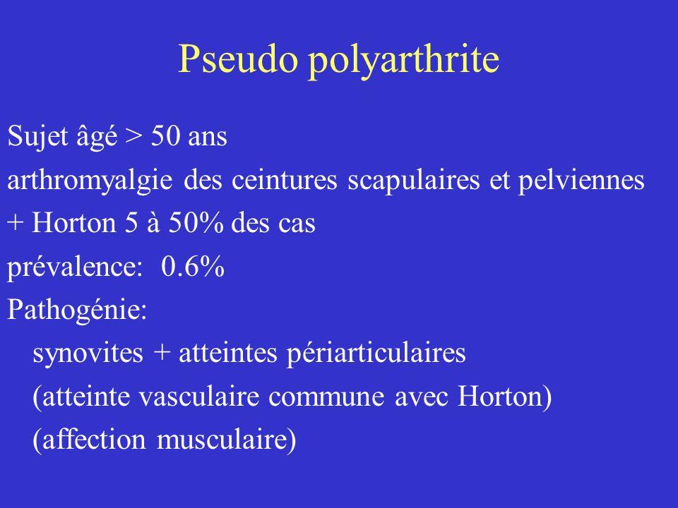 Pseudo polyarthrite Sujet âgé > 50 ans arthromyalgie des ceintures scapulaires et pelviennes + Horton 5 à 50% des cas prévalence: 0.6% Pathogénie: syn