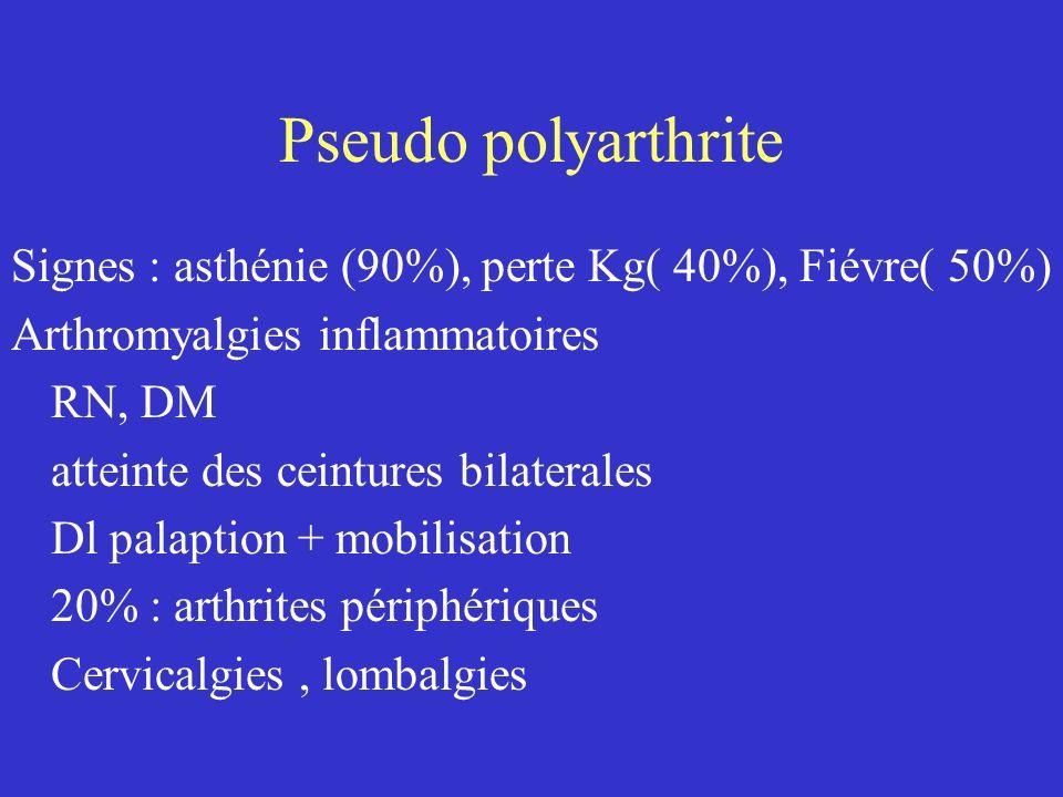 Pseudo polyarthrite Signes : asthénie (90%), perte Kg( 40%), Fiévre( 50%) Arthromyalgies inflammatoires RN, DM atteinte des ceintures bilaterales Dl p