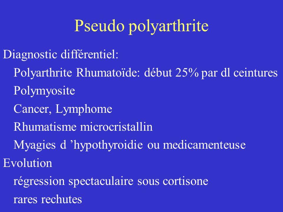 Pseudo polyarthrite Traitement: Corticothérapie 20 mg / j (1/4 à 1/2 mg / kg / j) amélioration rapide et spectaculaire regression progressive durée > 1 an Mesures associées: sans sel, sans sucre, +K calcium + Vit D + bisphophonates (OP cortison)