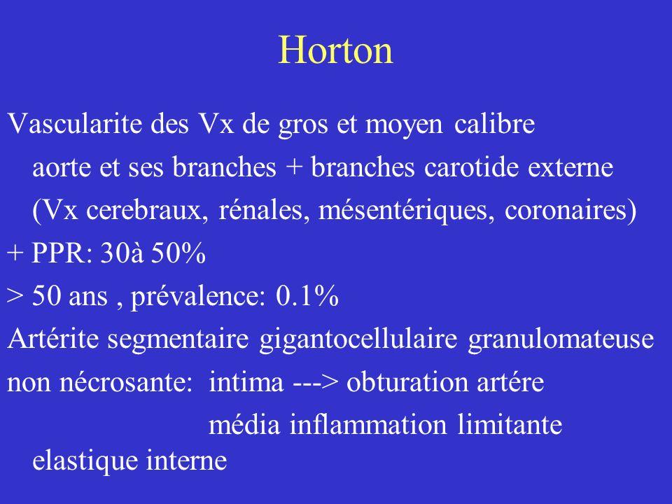 Horton Vascularite des Vx de gros et moyen calibre aorte et ses branches + branches carotide externe (Vx cerebraux, rénales, mésentériques, coronaires