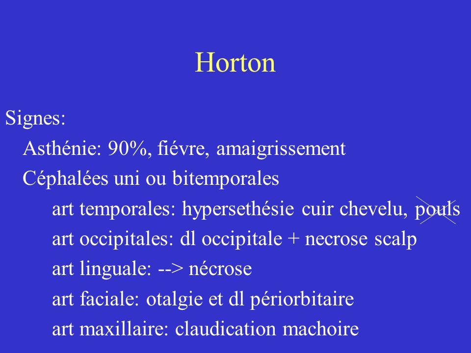 Horton Complications oculaires: +++ oblitération artére ophtalmique : 5 à 20% --> cécité brutale ( prodrome: flou, hallucination vision) FO: oedeme papille du nerf optique Autres: AVC, atteinte neuro périph, artére des mbres, artéres pulmonaires: toux, infiltrat, coronaire: IDM, anévrysme Ao, Renales: HTA