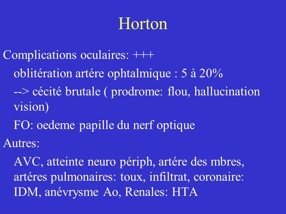 Horton Complications oculaires: +++ oblitération artére ophtalmique : 5 à 20% --> cécité brutale ( prodrome: flou, hallucination vision) FO: oedeme pa
