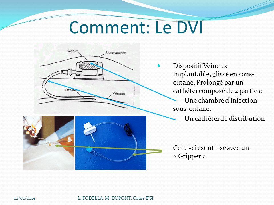 22/02/2014L. FODELLA, M. DUPONT, Cours IFSI Comment: Le DVI Dispositif Veineux Implantable, glissé en sous- cutané. Prolongé par un cathéter composé d