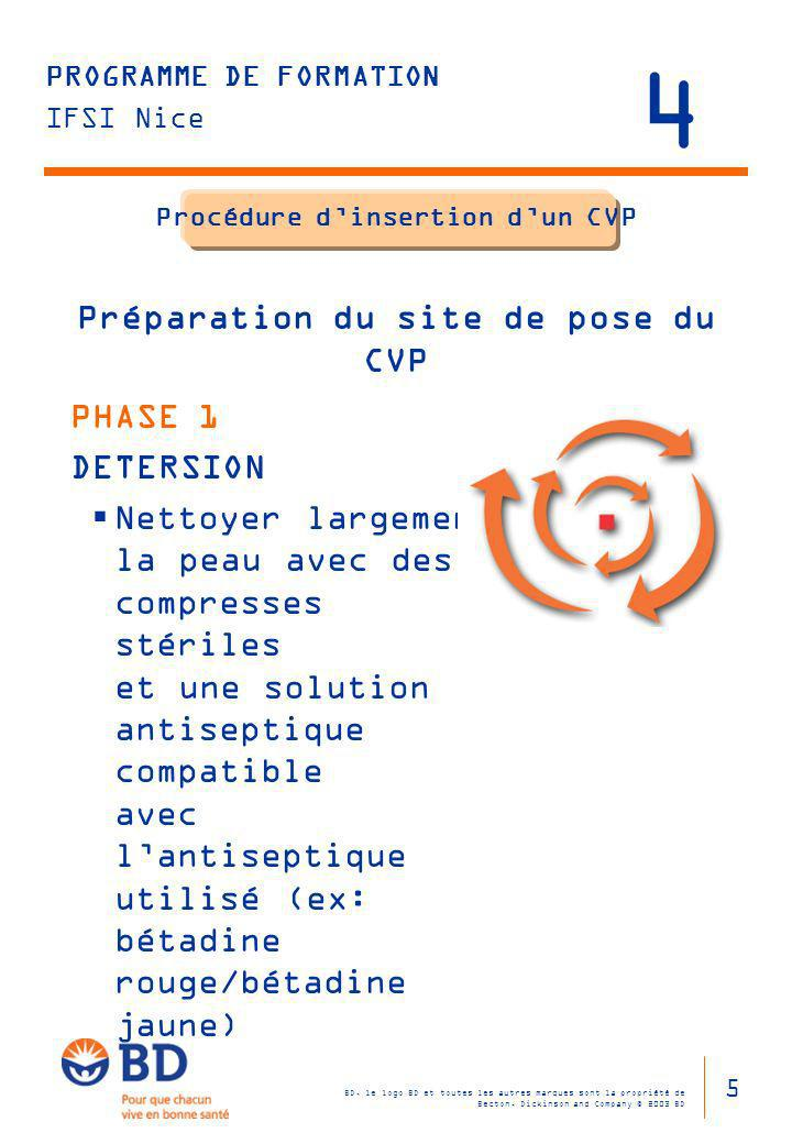 BD, le logo BD et toutes les autres marques sont la propriété de Becton, Dickinson and Company © 2003 BD PROGRAMME DE FORMATION IFSI Nice Procédure di
