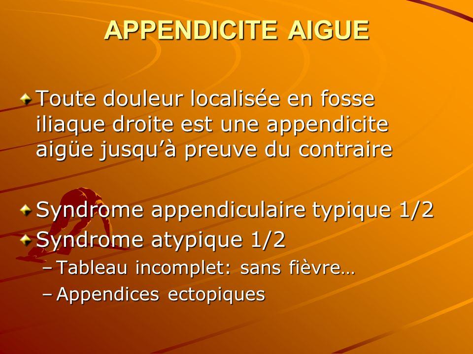 APPENDICITE AIGUE Toute douleur localisée en fosse iliaque droite est une appendicite aigüe jusquà preuve du contraire Syndrome appendiculaire typique