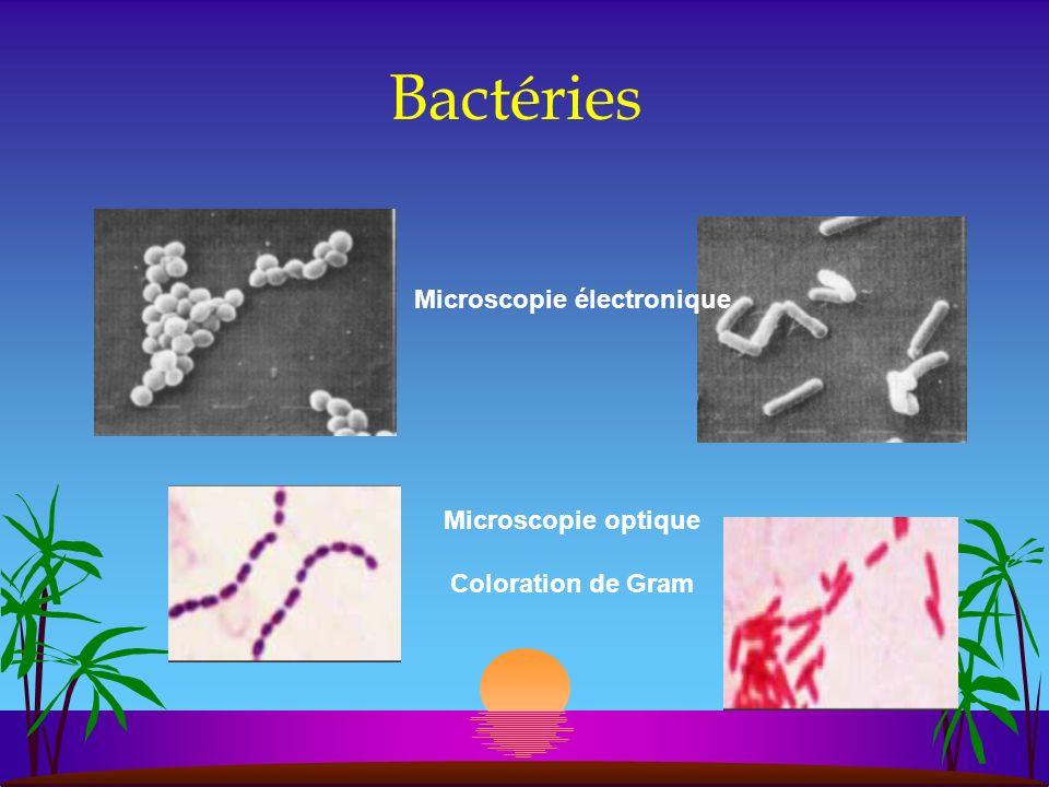 La microscopie électronique montre la structure type prokaryote