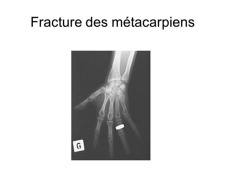 Fracture des métacarpiens