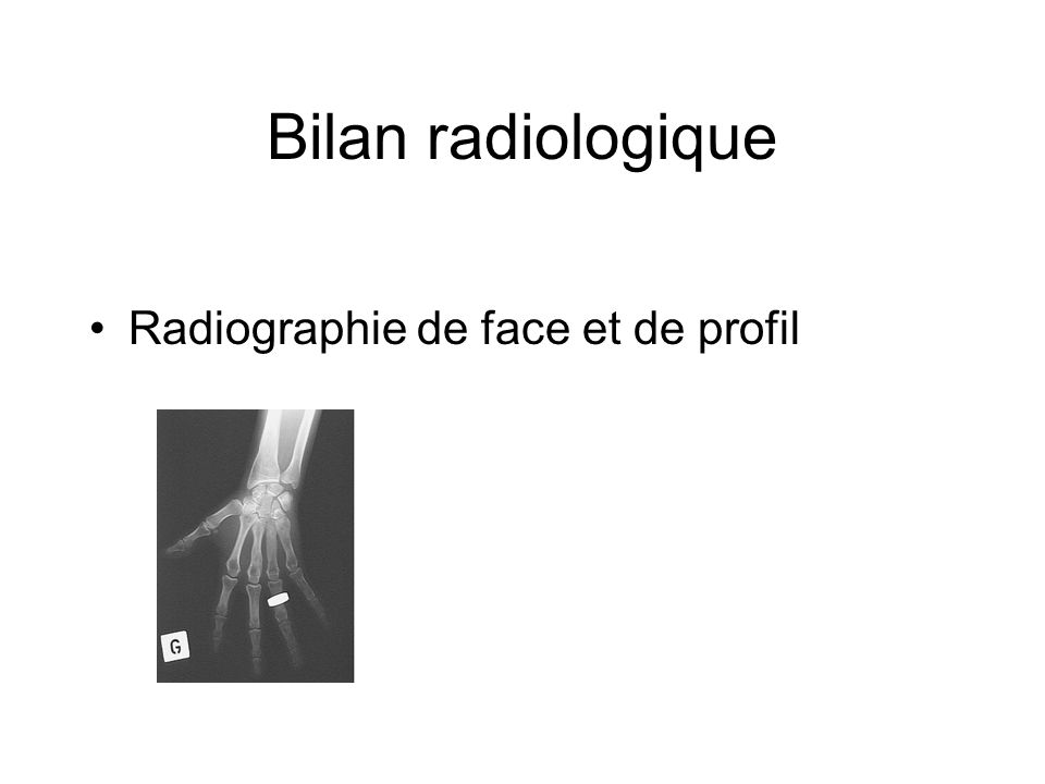 Bilan radiologique Radiographie de face et de profil