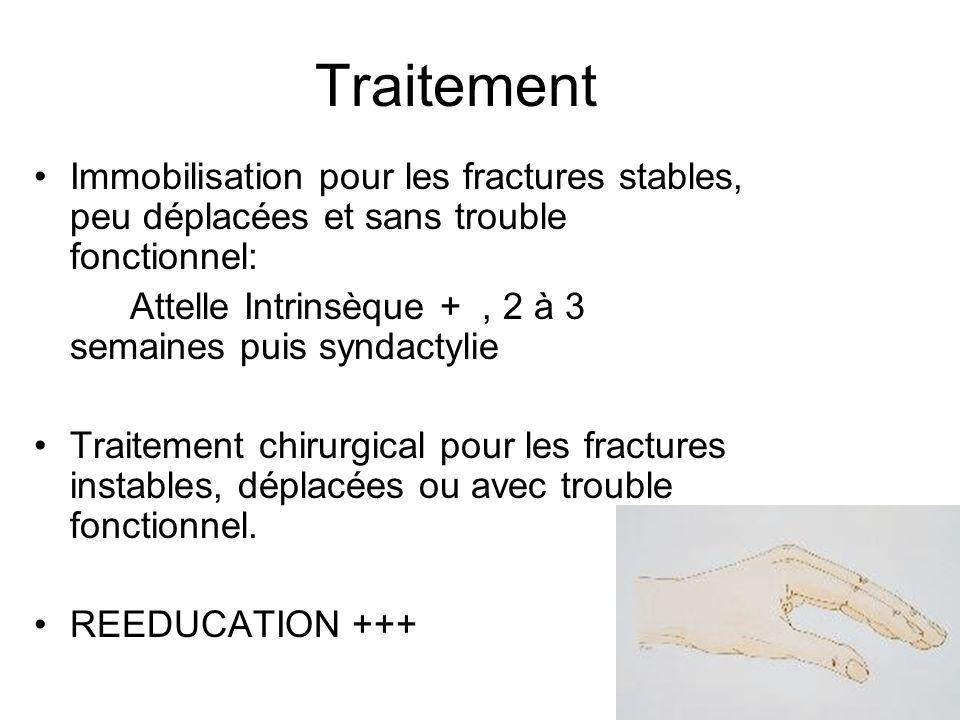 Traitement Immobilisation pour les fractures stables, peu déplacées et sans trouble fonctionnel: Attelle Intrinsèque +, 2 à 3 semaines puis syndactyli