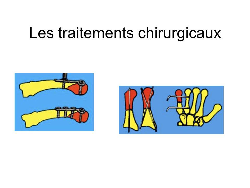 Les traitements chirurgicaux