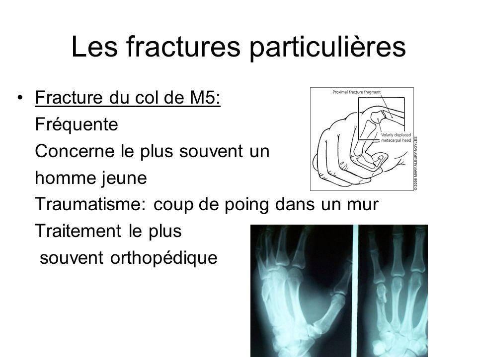 Les fractures particulières Fracture du col de M5: Fréquente Concerne le plus souvent un homme jeune Traumatisme: coup de poing dans un mur Traitement