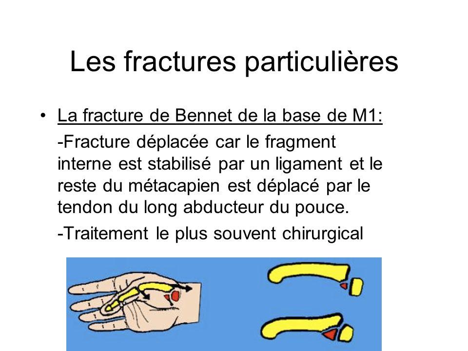 Les fractures particulières La fracture de Bennet de la base de M1: -Fracture déplacée car le fragment interne est stabilisé par un ligament et le res