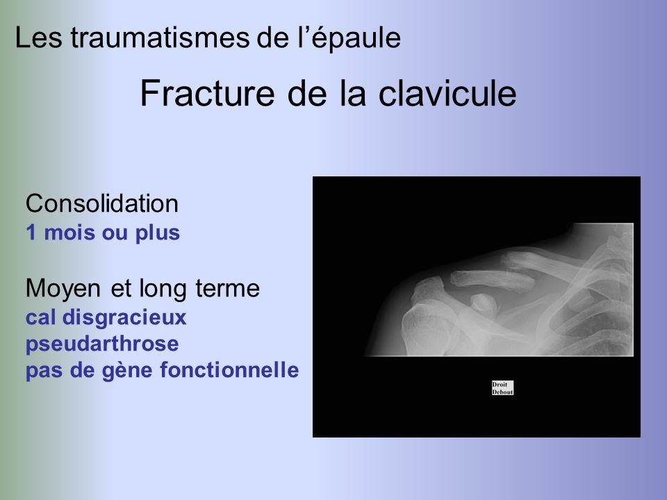 Fracture de la clavicule Consolidation 1 mois ou plus Moyen et long terme cal disgracieux pseudarthrose pas de gène fonctionnelle