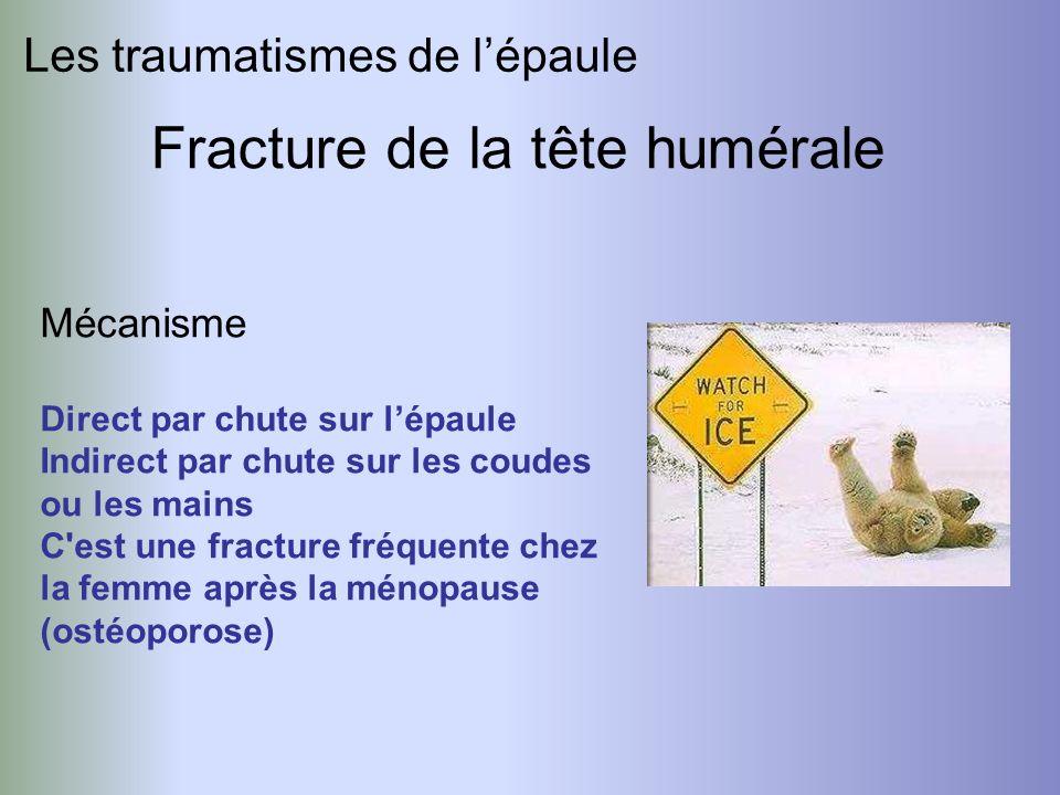 Les traumatismes de lépaule Fracture de la tête humérale Mécanisme Direct par chute sur lépaule Indirect par chute sur les coudes ou les mains C'est u