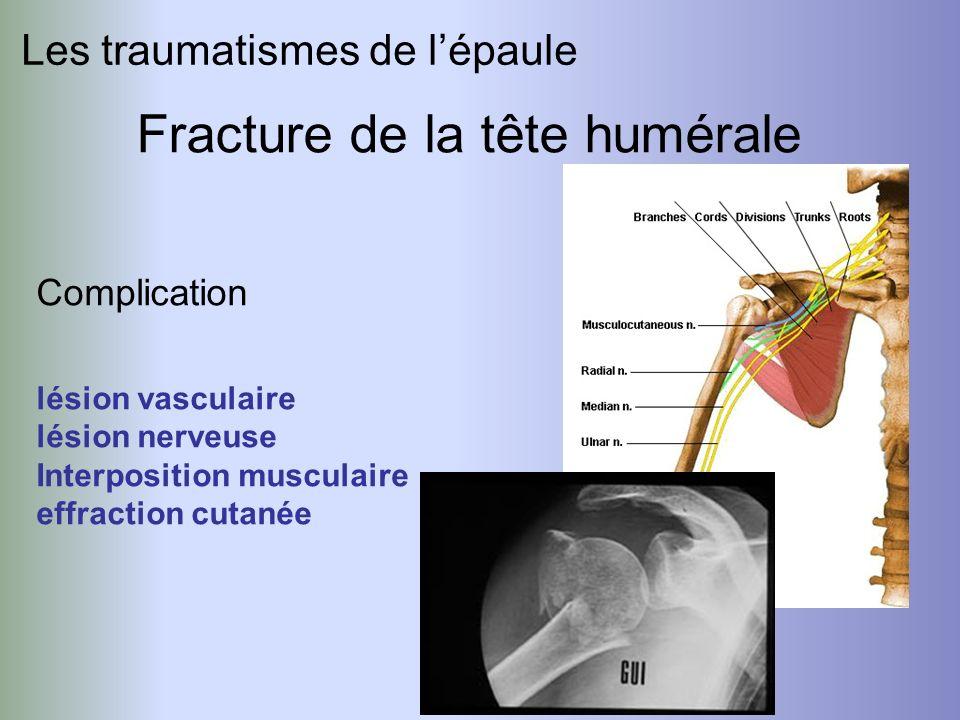Les traumatismes de lépaule Fracture de la tête humérale Complication lésion vasculaire lésion nerveuse Interposition musculaire effraction cutanée
