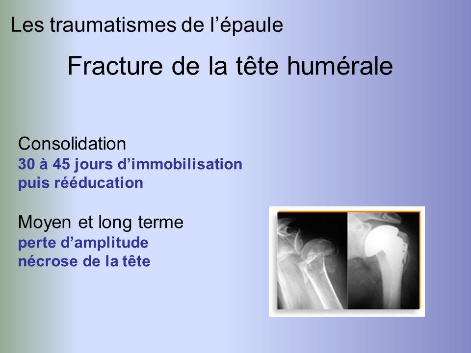 Les traumatismes de lépaule Fracture de la tête humérale Consolidation 30 à 45 jours dimmobilisation puis rééducation Moyen et long terme perte dampli