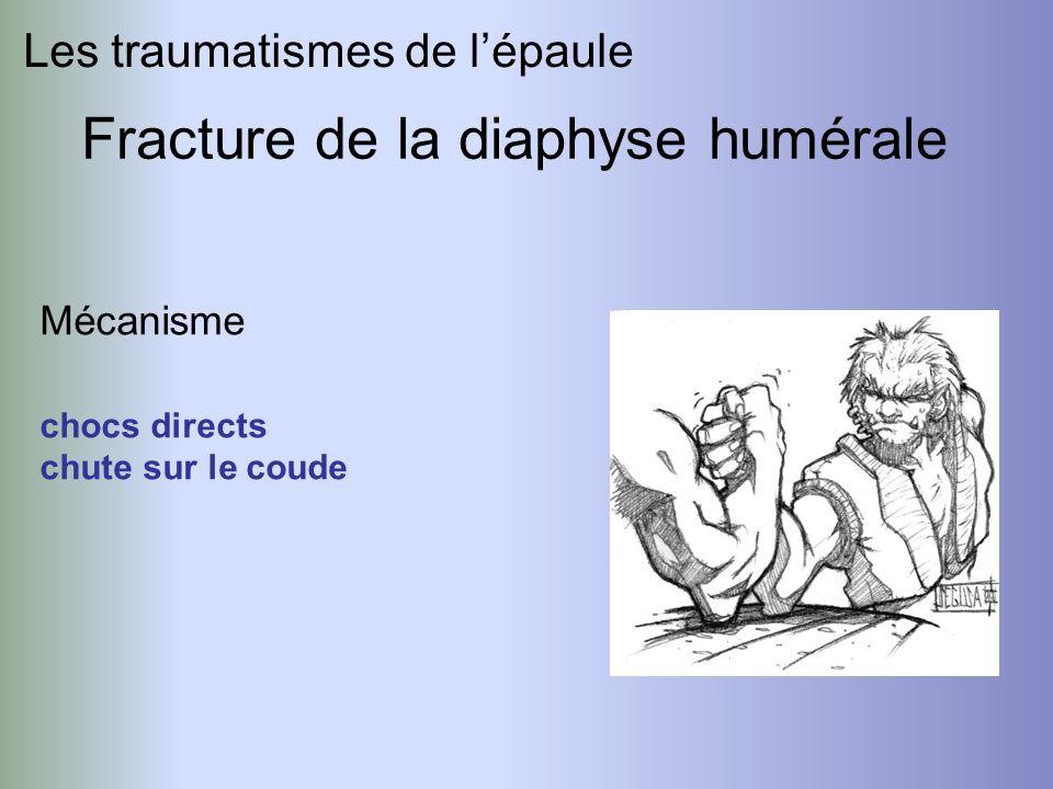 Les traumatismes de lépaule Fracture de la diaphyse humérale Mécanisme chocs directs chute sur le coude