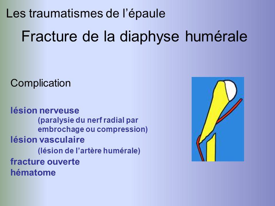 Fracture de la diaphyse humérale Les traumatismes de lépaule Complication lésion nerveuse (paralysie du nerf radial par embrochage ou compression) lés