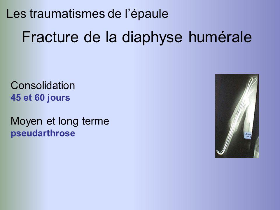 Fracture de la diaphyse humérale Les traumatismes de lépaule Consolidation 45 et 60 jours Moyen et long terme pseudarthrose