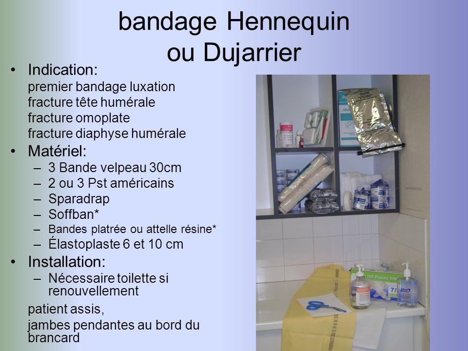 bandage Hennequin ou Dujarrier Indication: premier bandage luxation fracture tête humérale fracture omoplate fracture diaphyse humérale Matériel: –3 B