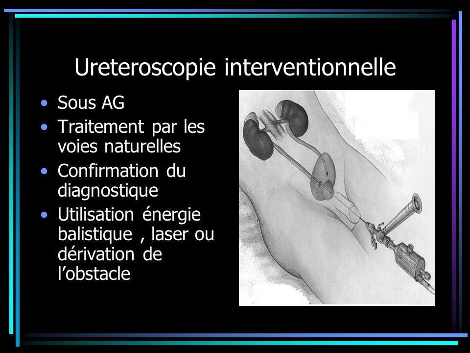 Ureteroscopie interventionnelle Sous AG Traitement par les voies naturelles Confirmation du diagnostique Utilisation énergie balistique, laser ou déri
