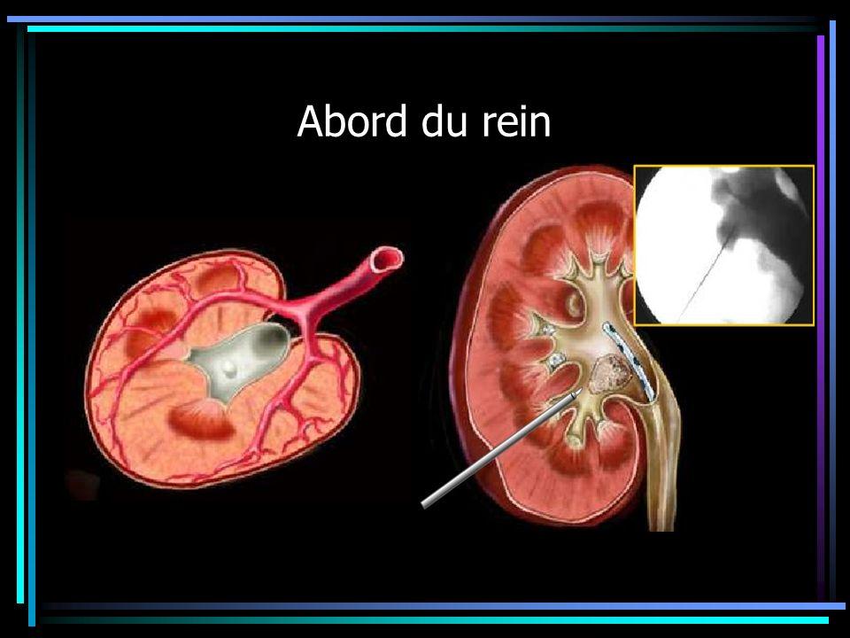 Abord du rein Il existe deux systèmes vasculaires antérieurs et postérieurs Une zone de jonction avasculaire: la zone de ponction