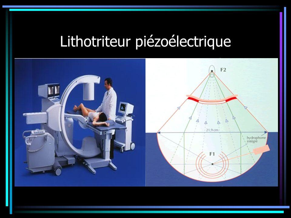 Lithotriteur piézoélectrique Double repérage échographique et radiologique Gestion de la séance en temps réel Sans anesthésie et en ambulatoire Durée