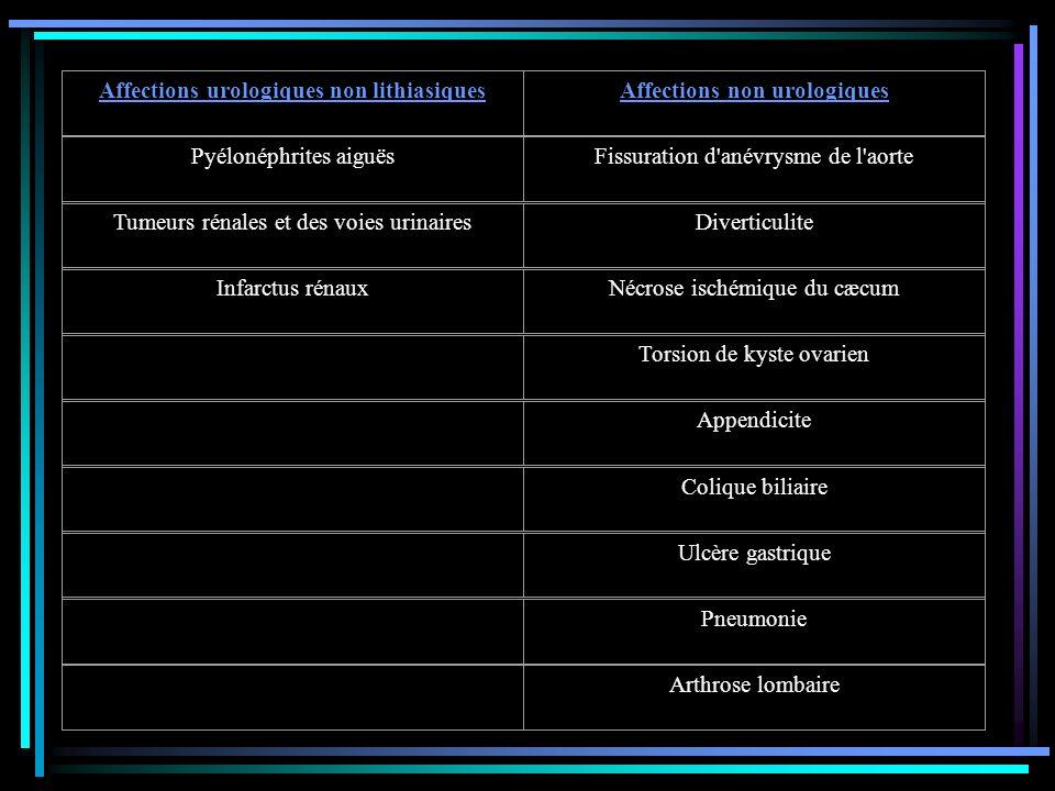 Affections urologiques non lithiasiquesAffections non urologiques Pyélonéphrites aiguësFissuration d'anévrysme de l'aorte Tumeurs rénales et des voies