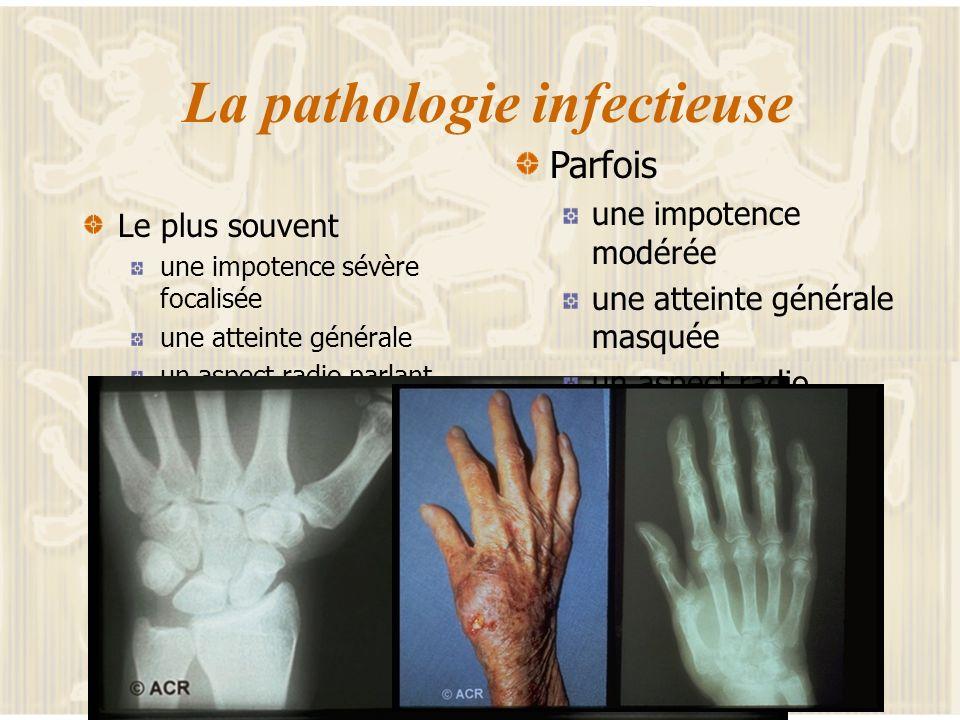 La main inflammatoire Une localisation vite gênante Un diagnostic à rapidement réalisé éliminer une arthrite septique la main rhumatismale inflammatoi