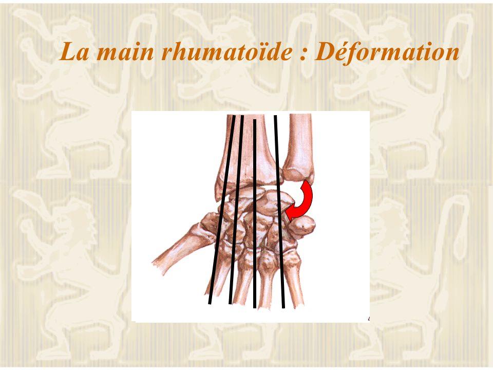 La main rhumatoïde : le diagnostic L atteinte prédominante précoce symétrique L aide de la biologie un syndrome inflammatoire les facteurs rhumatoïdes