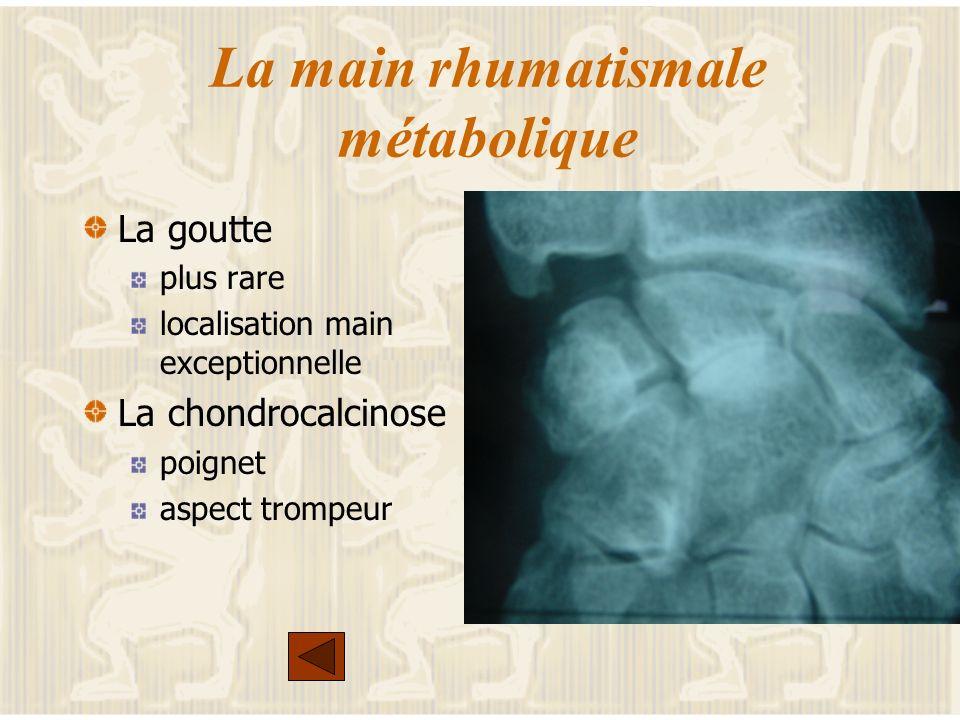 Les autres rhumatismes inflammatoires Les S.A.S.N : le rhumatisme psoriasique Le Lupus : la main de Jaccoud La sclérodermie