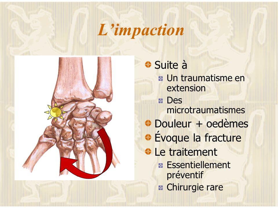 Le poignet traumatique Deux écueils Rater la fracture du scaphoïde Le retard Les incidences Considérer simplement lentorse Les diagnostics difficiles