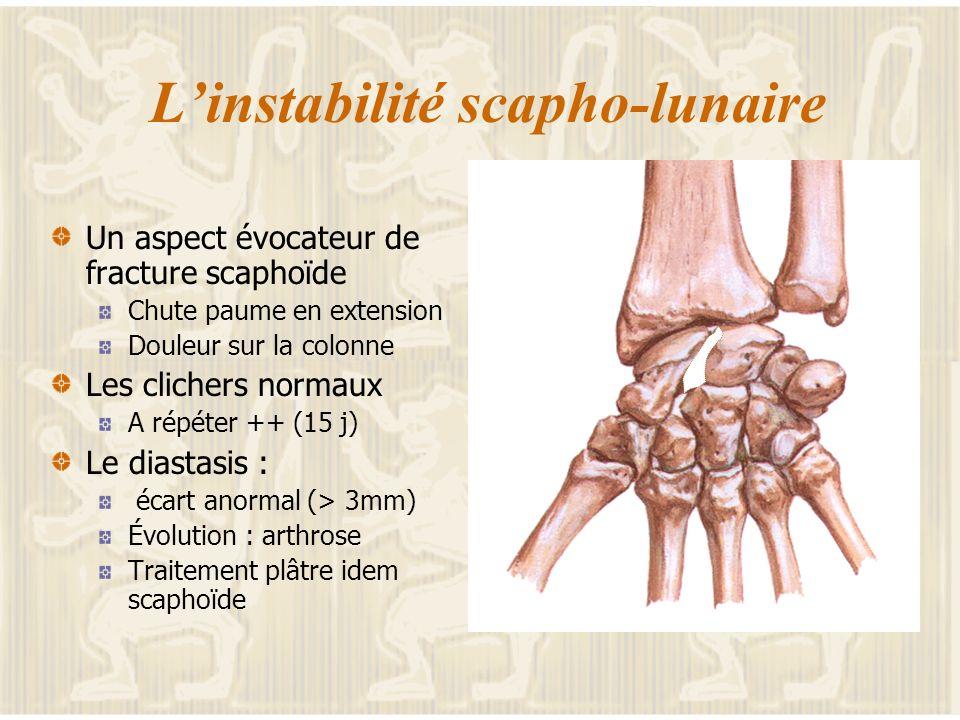 Limpaction Suite à Un traumatisme en extension Des microtraumatismes Douleur + oedèmes Évoque la fracture Le traitement Essentiellement préventif Chir