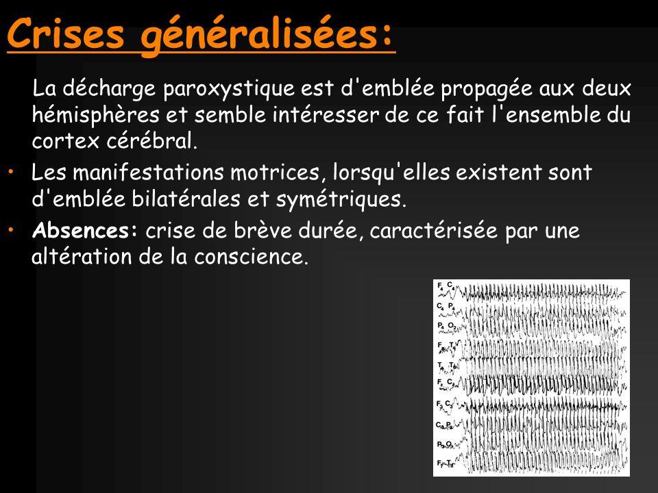 Crises généralisées: La décharge paroxystique est d'emblée propagée aux deux hémisphères et semble intéresser de ce fait l'ensemble du cortex cérébral