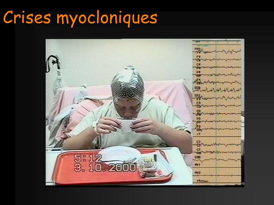 Crises myocloniques