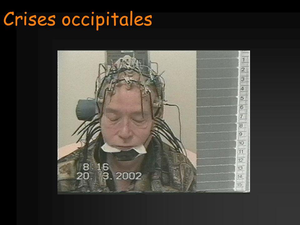 Crises occipitales
