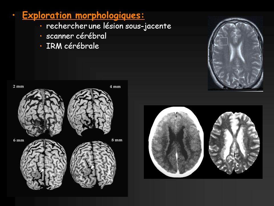 Exploration morphologiques: rechercher une lésion sous-jacente scanner cérébral IRM cérébrale