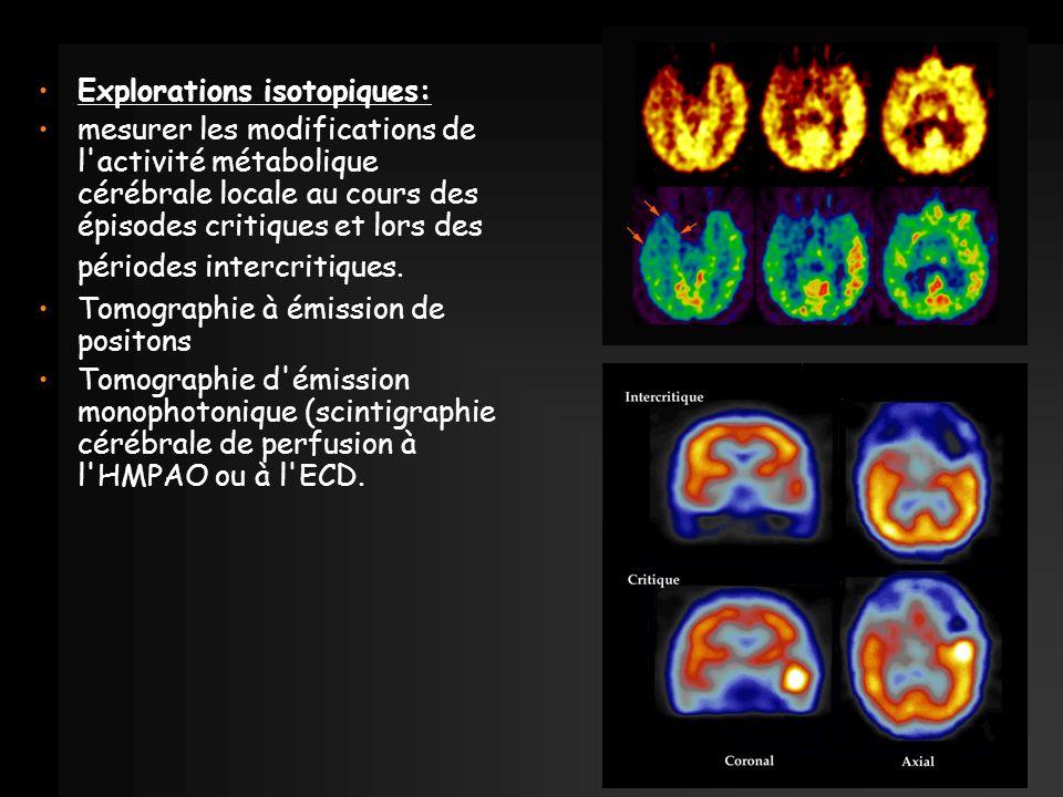 Explorations isotopiques: mesurer les modifications de l'activité métabolique cérébrale locale au cours des épisodes critiques et lors des périodes in
