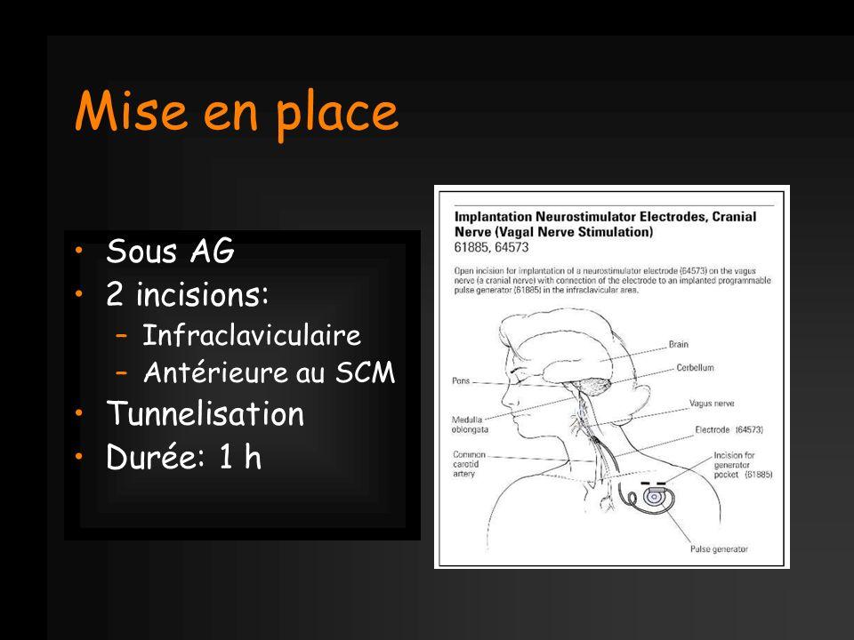 Mise en place Sous AG 2 incisions: –Infraclaviculaire –Antérieure au SCM Tunnelisation Durée: 1 h