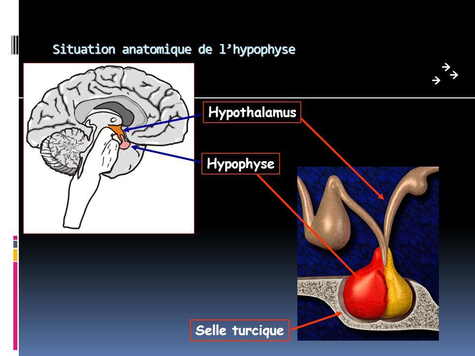 Laxe lactotrope Excès = adénome lactotrope: le plus fréquent des adénomes hypophysaires action anti-gonadotrope +++ tableau clinique: F syndrome aménorrhée/galactorrhée H gynécomastie, troubles de la libido +++ (galactorrhée rarissime) adénomes mixtes: GH +++, TSH, ACTH Autres causes: grossesse, médicaments +++ (psychotropes, anti-émétiques), insuffisances rénale et hépatique… Biologie: PRL élevée