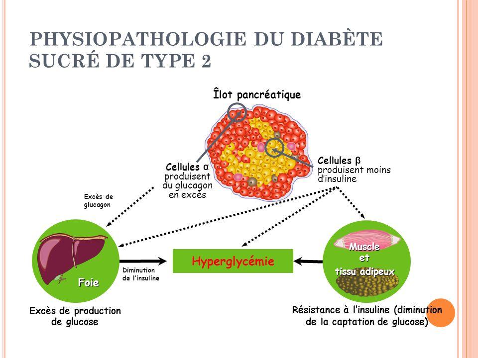 PHYSIOPATHOLOGIE DU DIABÈTE SUCRÉ DE TYPE 2 Îlot pancréatique Hyperglycémie Excès de production de glucose Foie Excès de glucagon Diminution de linsul