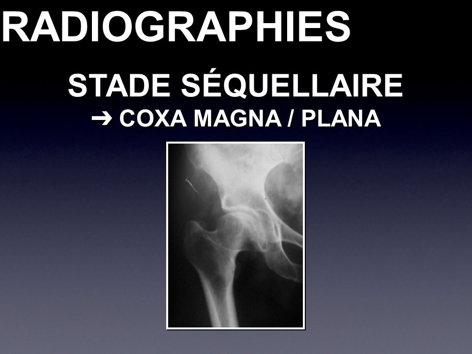 RADIOGRAPHIESRADIOGRAPHIES STADE SÉQUELLAIRE COXA MAGNA / PLANA COXA MAGNA / PLANA STADE SÉQUELLAIRE COXA MAGNA / PLANA COXA MAGNA / PLANA