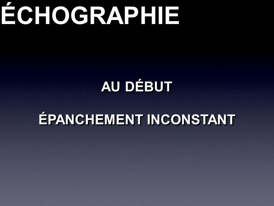 ÉCHOGRAPHIEÉCHOGRAPHIE AU DÉBUT ÉPANCHEMENT INCONSTANT AU DÉBUT ÉPANCHEMENT INCONSTANT