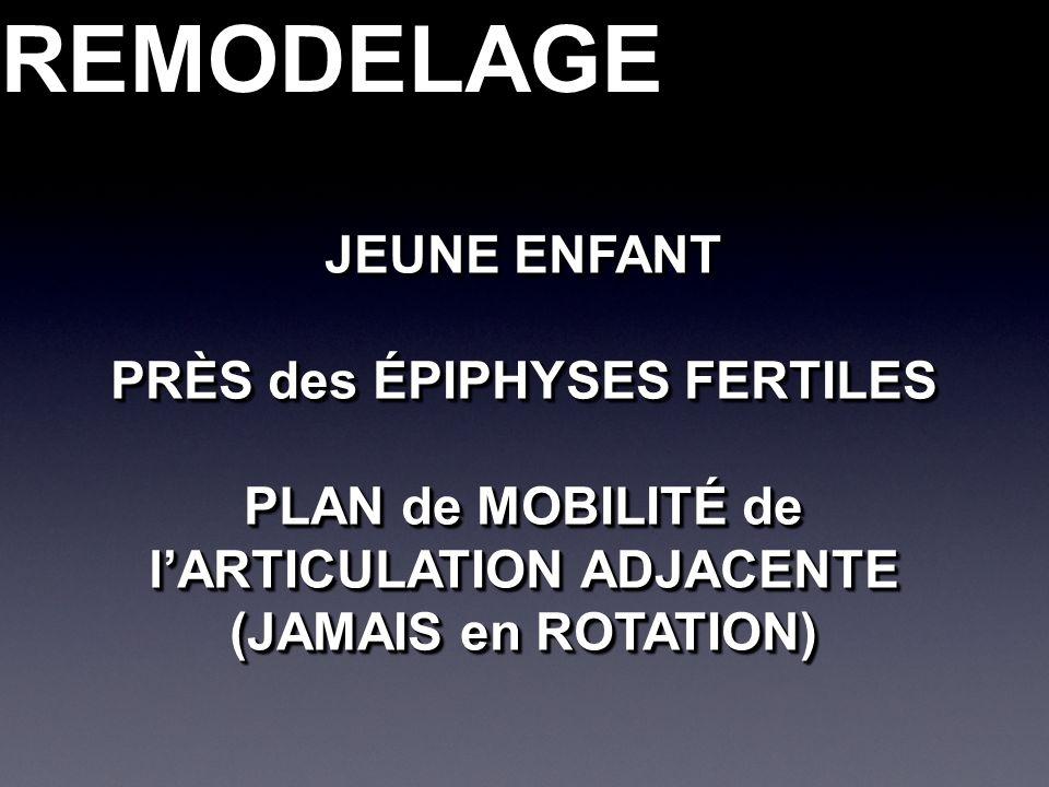 REMODELAGEREMODELAGE JEUNE ENFANT PRÈS des ÉPIPHYSES FERTILES PLAN de MOBILITÉ de lARTICULATION ADJACENTE (JAMAIS en ROTATION) JEUNE ENFANT PRÈS des ÉPIPHYSES FERTILES PLAN de MOBILITÉ de lARTICULATION ADJACENTE (JAMAIS en ROTATION)