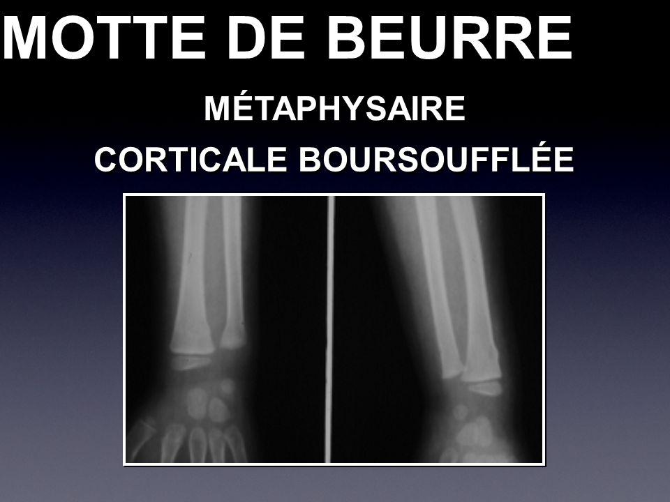 MÉTAPHYSAIREMÉTAPHYSAIRE CORTICALE BOURSOUFFLÉE MOTTE DE BEURRE