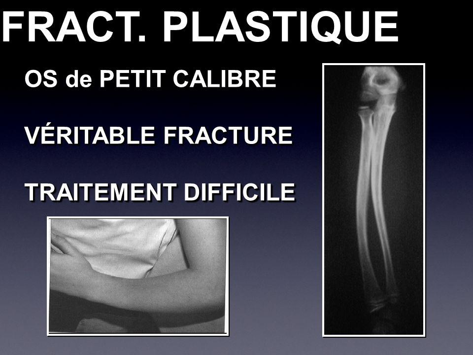 FRACT. PLASTIQUE OS de PETIT CALIBRE VÉRITABLE FRACTURE TRAITEMENT DIFFICILE OS de PETIT CALIBRE VÉRITABLE FRACTURE TRAITEMENT DIFFICILE