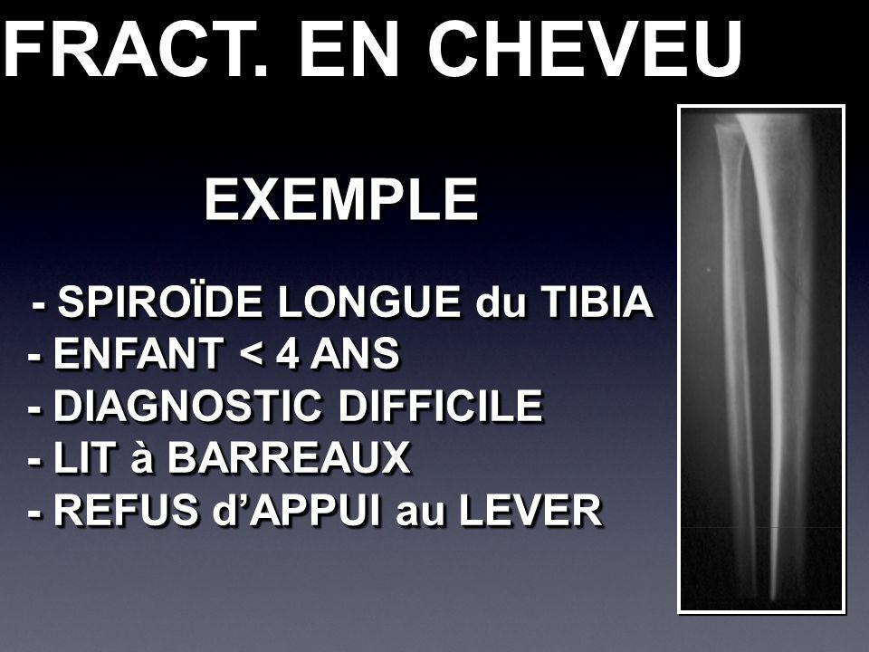FRACT. EN CHEVEU - SPIROÏDE LONGUE du TIBIA - ENFANT < 4 ANS - DIAGNOSTIC DIFFICILE - LIT à BARREAUX - REFUS dAPPUI au LEVER - SPIROÏDE LONGUE du TIBI