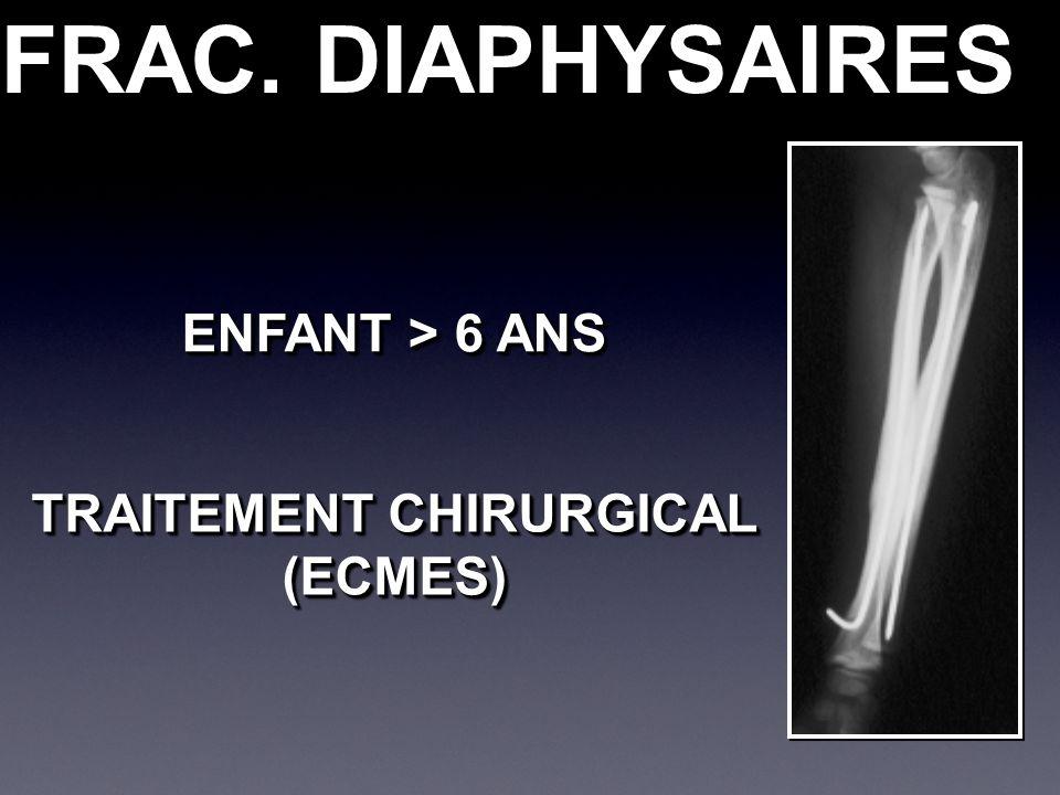 FRAC. DIAPHYSAIRES ENFANT > 6 ANS TRAITEMENT CHIRURGICAL (ECMES) (ECMES)